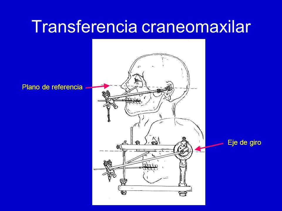 Bola condilar Es concéntrica: –Con respecto al pilar condilar –Con respecto al complejo condilar Atravesada por el eje del articulador