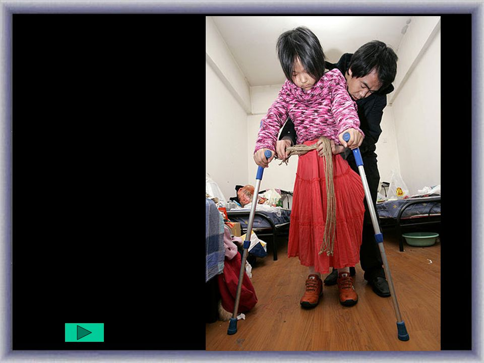 Dos prótesis....