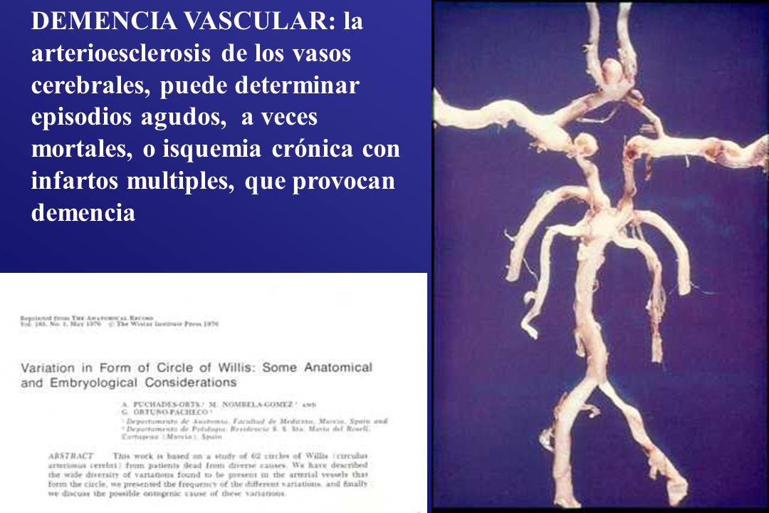 DEMENCIA VASCULAR: la arterioesclerosis de los vasos cerebrales, puede determinar episodios agudos, a veces mortales, o isquemia crónica con infartos