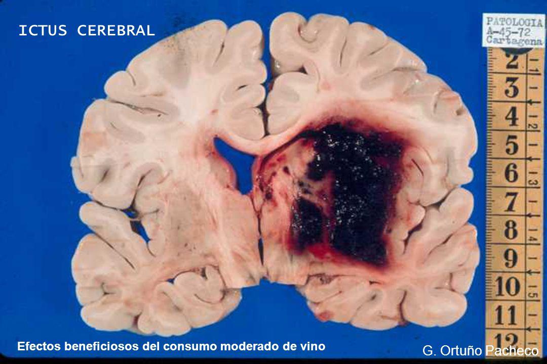 Efectos beneficiosos del consumo moderado de vino G. Ortuño Pacheco ICTUS CEREBRAL