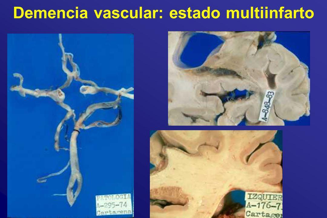 Demencia vascular: estado multiinfarto