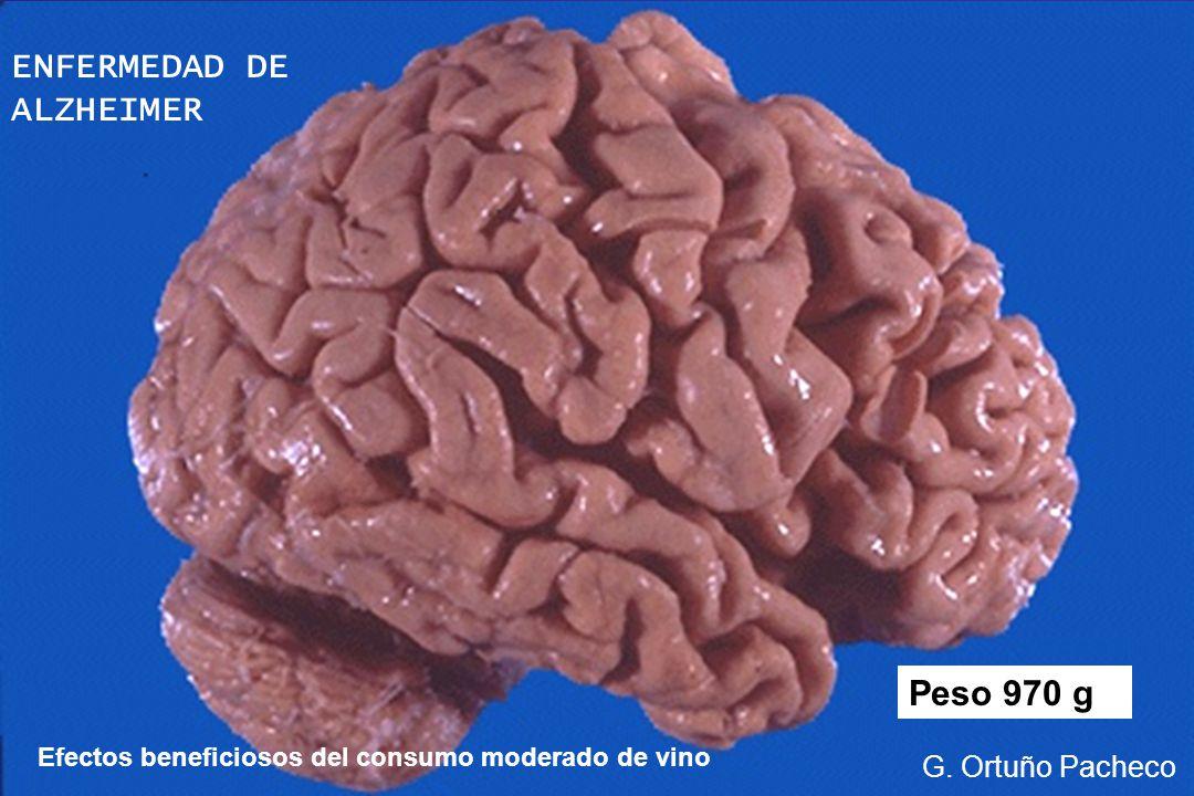 Peso 970 g Efectos beneficiosos del consumo moderado de vino G. Ortuño Pacheco ENFERMEDAD DE ALZHEIMER