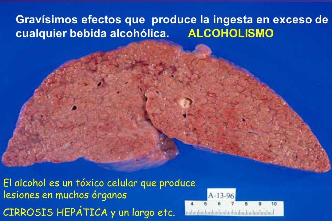Gravísimos efectos que produce la ingesta en exceso de cualquier bebida alcohólica. ALCOHOLISMO El alcohol es un tóxico celular que produce lesiones e