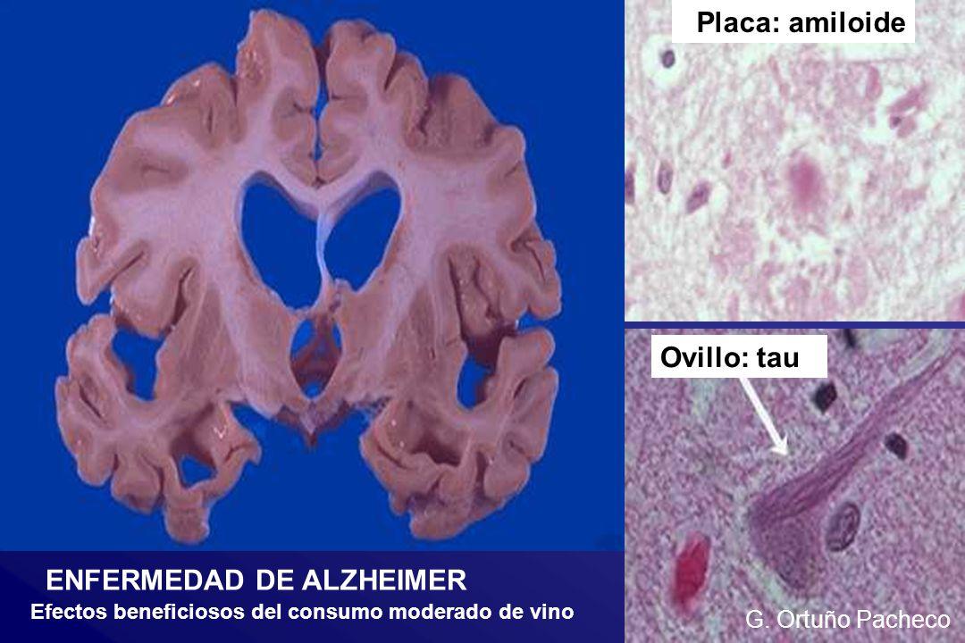 G. Ortuño Pacheco ENFERMEDAD DE ALZHEIMER Placa: amiloide Ovillo: tau Efectos beneficiosos del consumo moderado de vino G. Ortuño Pacheco