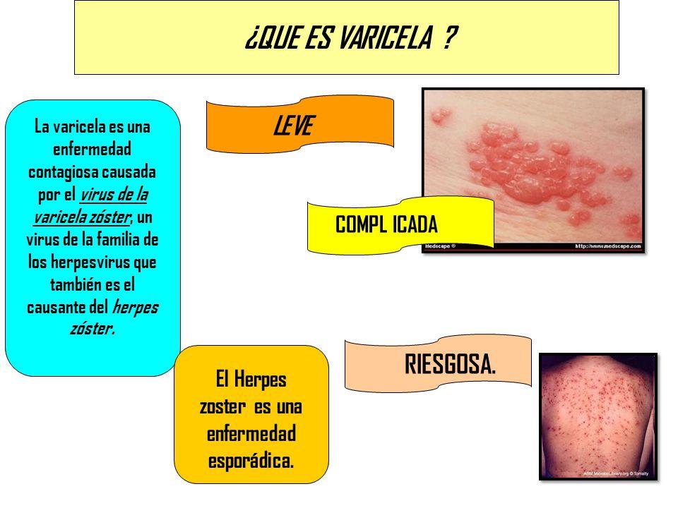 ¿QUE ES VARICELA ? La varicela es una enfermedad contagiosa causada por el virus de la varicela zóster, un virus de la familia de los herpesvirus que