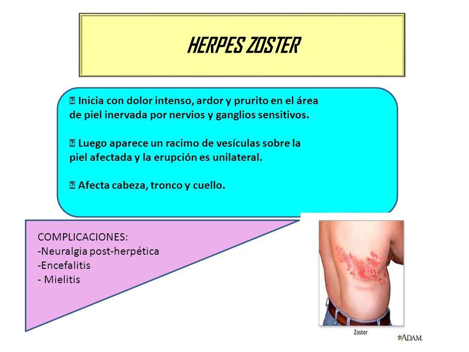 HERPES ZOSTER Inicia con dolor intenso, ardor y prurito en el área de piel inervada por nervios y ganglios sensitivos. Luego aparece un racimo de vesí