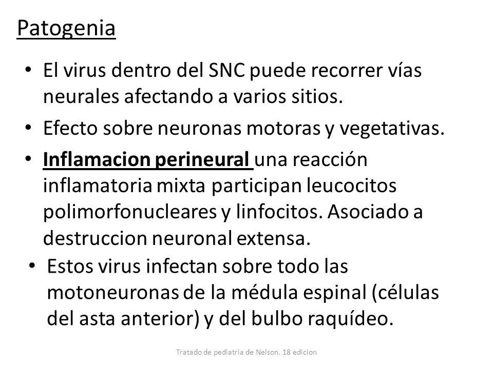 Patogenia El virus dentro del SNC puede recorrer vías neurales afectando a varios sitios. Efecto sobre neuronas motoras y vegetativas. Inflamacion per