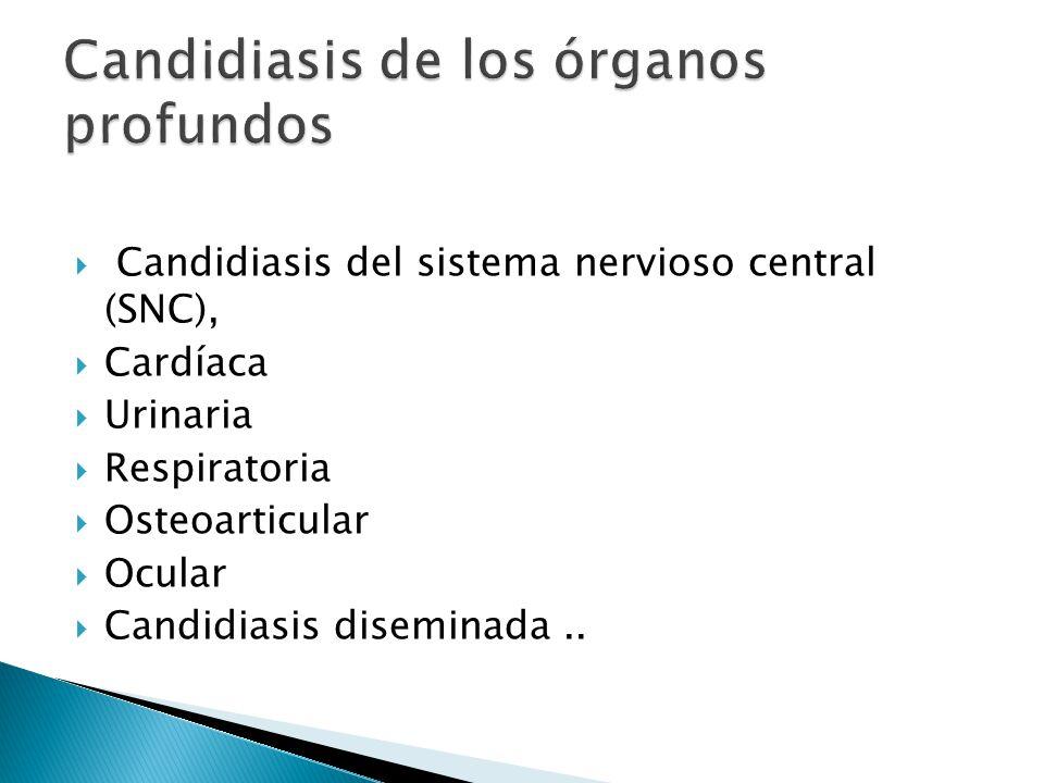 Candidiasis del sistema nervioso central (SNC), Cardíaca Urinaria Respiratoria Osteoarticular Ocular Candidiasis diseminada..
