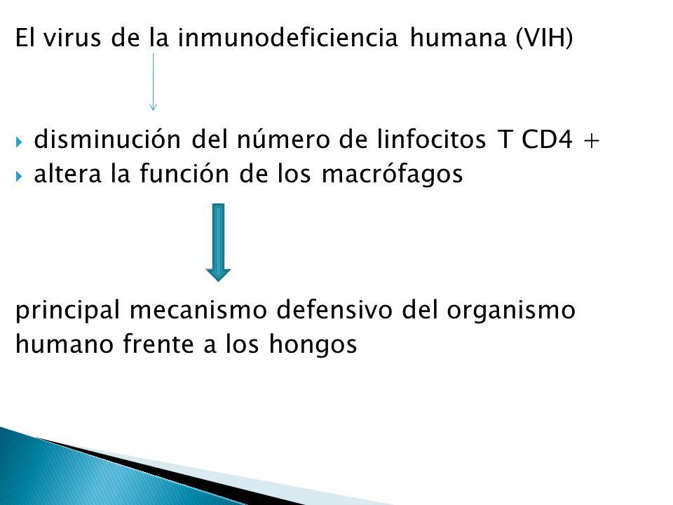El virus de la inmunodeficiencia humana (VIH) disminución del número de linfocitos T CD4 + altera la función de los macrófagos principal mecanismo def