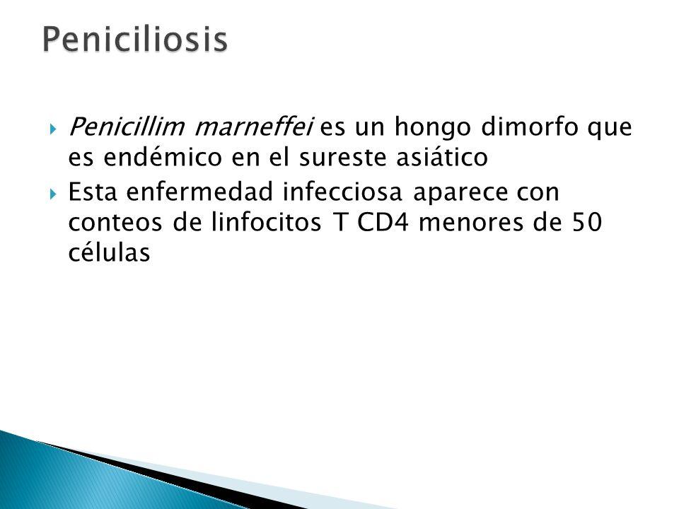 Penicillim marneffei es un hongo dimorfo que es endémico en el sureste asiático Esta enfermedad infecciosa aparece con conteos de linfocitos T CD4 men