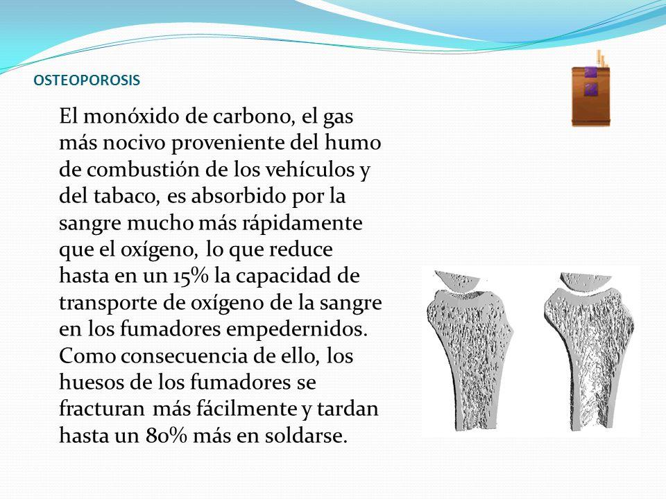 OSTEOPOROSIS El monóxido de carbono, el gas más nocivo proveniente del humo de combustión de los vehículos y del tabaco, es absorbido por la sangre mu