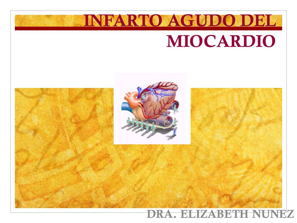 INFARTO AGUDO DEL MIOCARDIO DRA. ELIZABETH NUNEZ