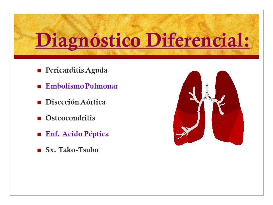 Diagnóstico Diferencial: Pericarditis Aguda Embolismo Pulmonar Disección Aórtica Osteocondritis Enf. Acido Péptica Sx. Tako-Tsubo
