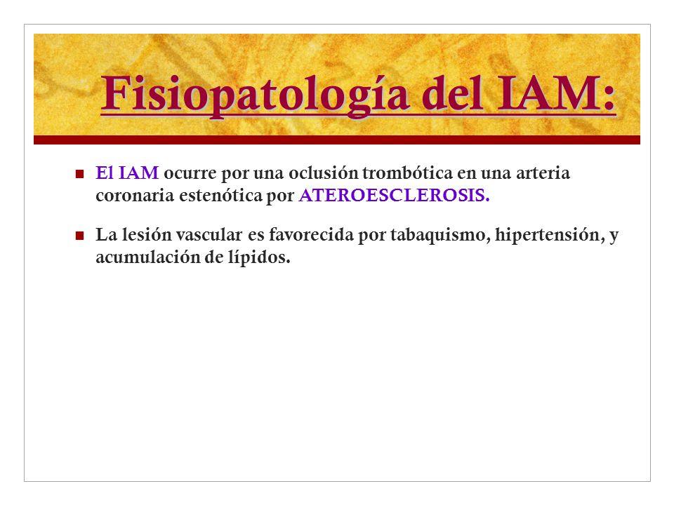 Fisiopatología del IAM: El IAM ocurre por una oclusión trombótica en una arteria coronaria estenótica por ATEROESCLEROSIS. La lesión vascular es favor