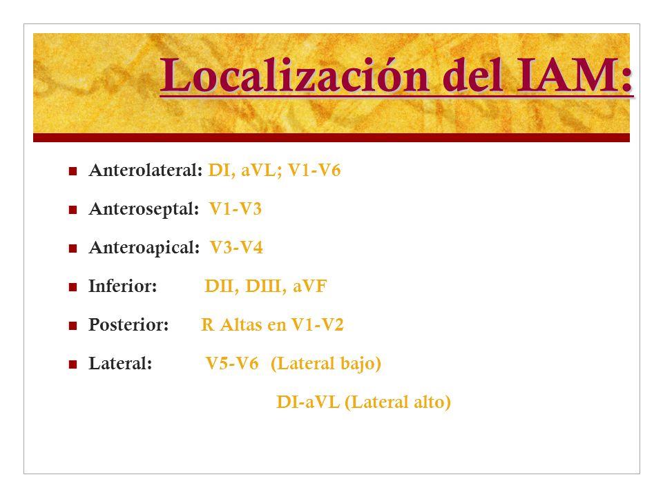 Localización del IAM: Anterolateral: DI, aVL; V1-V6 Anteroseptal: V1-V3 Anteroapical: V3-V4 Inferior: DII, DIII, aVF Posterior: R Altas en V1-V2 Later
