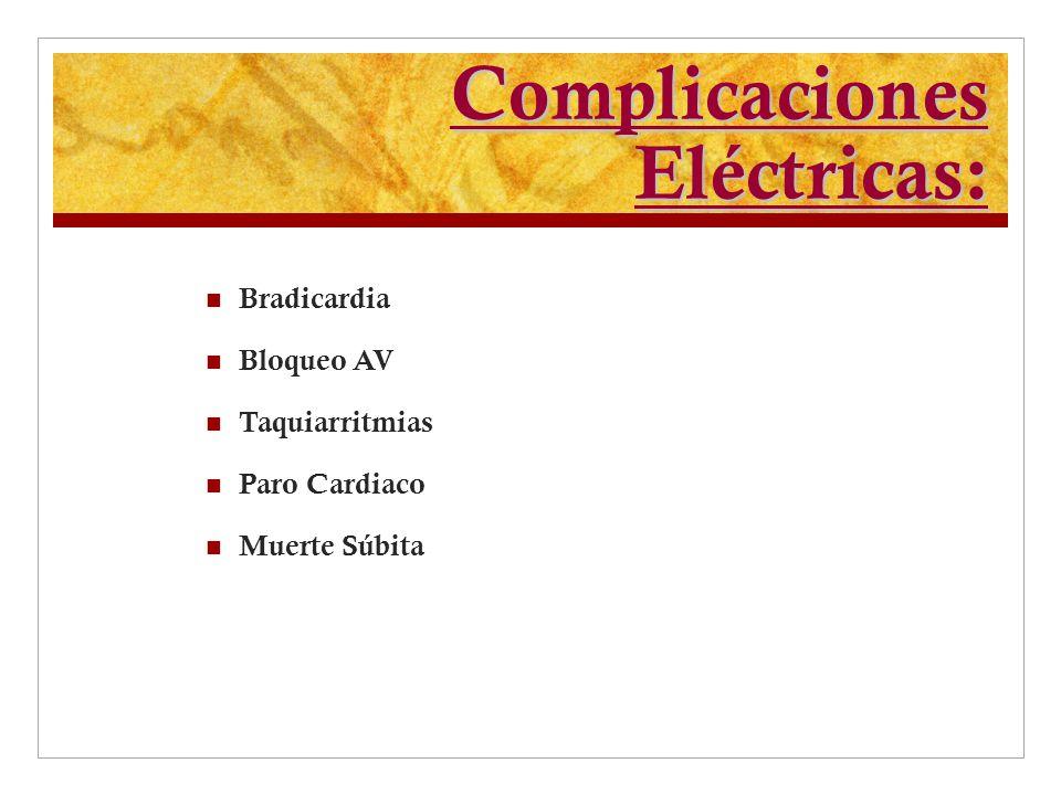 Complicaciones Eléctricas: Bradicardia Bloqueo AV Taquiarritmias Paro Cardiaco Muerte Súbita