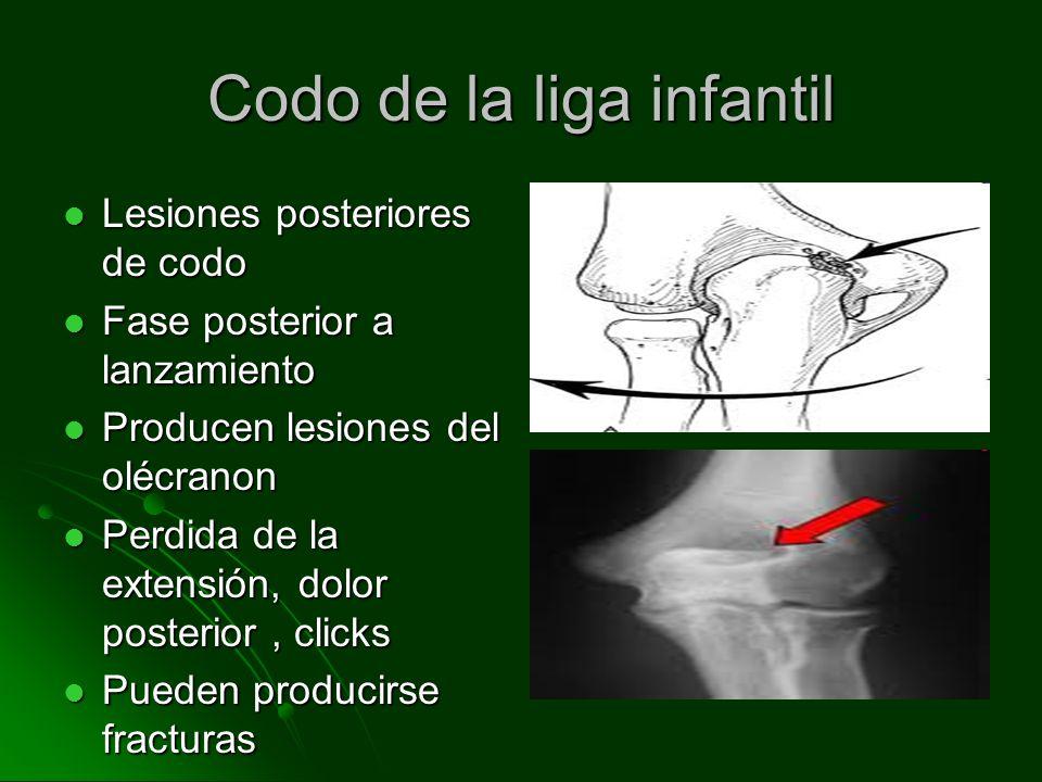 Lesiones posteriores de codo Lesiones posteriores de codo Fase posterior a lanzamiento Fase posterior a lanzamiento Producen lesiones del olécranon Producen lesiones del olécranon Perdida de la extensión, dolor posterior, clicks Perdida de la extensión, dolor posterior, clicks Pueden producirse fracturas Pueden producirse fracturas