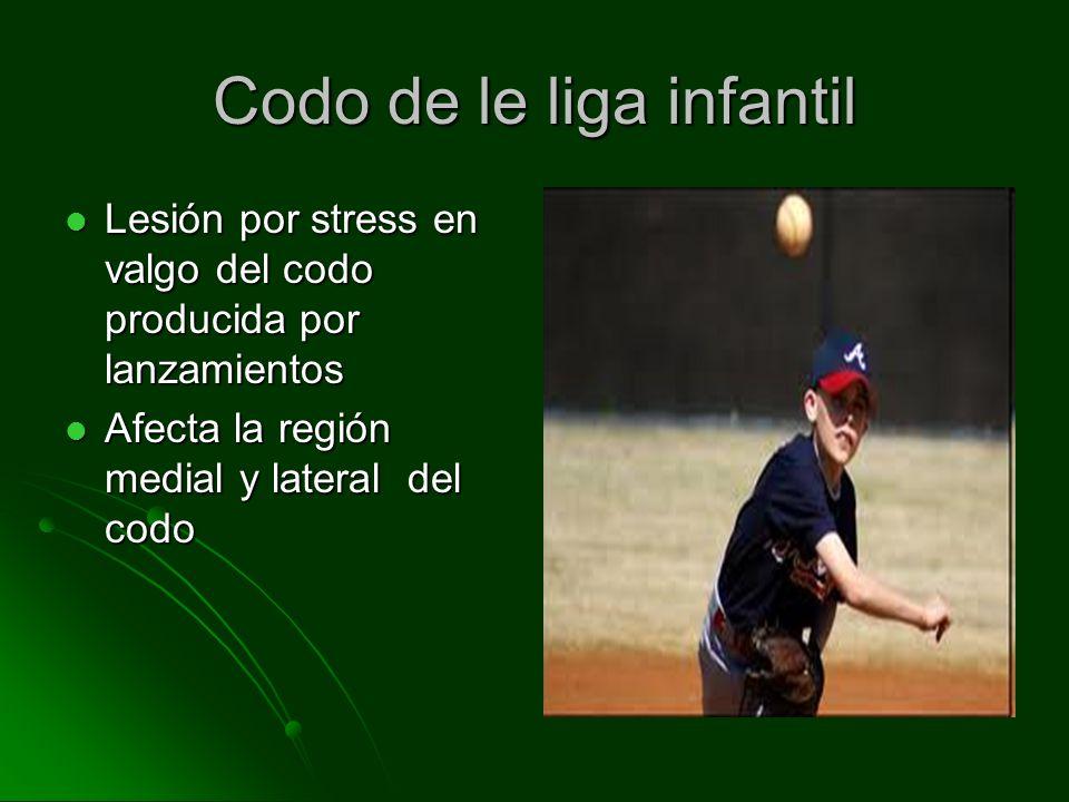 Codo de la liga infantil 4.8 millones de niños juegan baseball 4.8 millones de niños juegan baseball Incidencia 2-8% por año Incidencia 2-8% por año 96000-384000 niños 96000-384000 niños