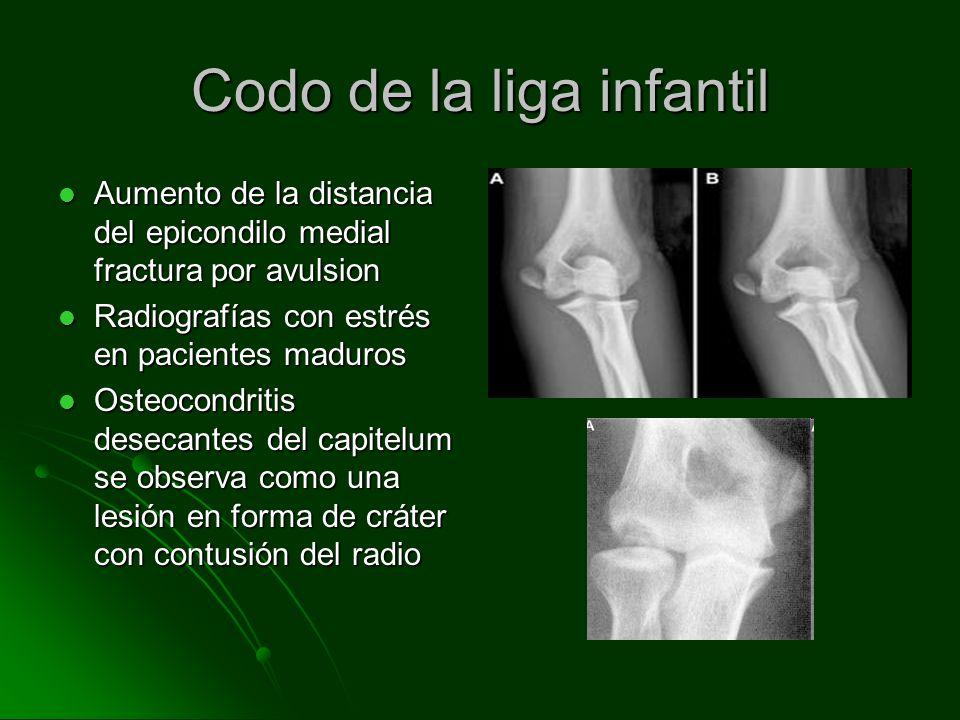 Codo de la liga infantil Aumento de la distancia del epicondilo medial fractura por avulsion Aumento de la distancia del epicondilo medial fractura po