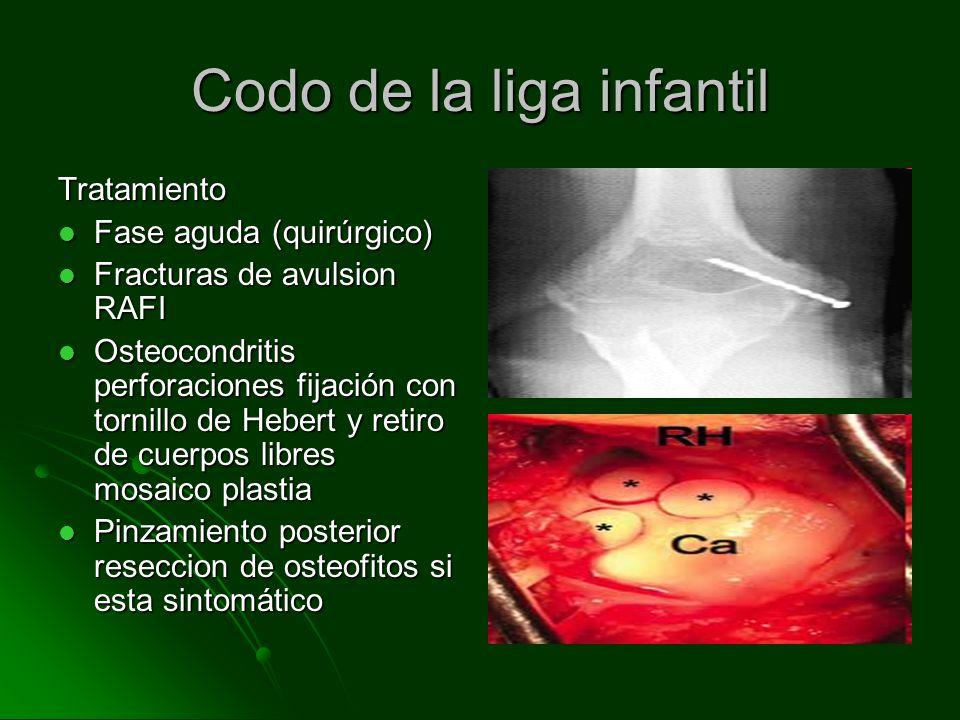 Codo de la liga infantil Tratamiento Fase aguda (quirúrgico) Fase aguda (quirúrgico) Fracturas de avulsion RAFI Fracturas de avulsion RAFI Osteocondri