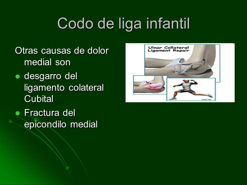 Codo de liga infantil El codo de liga infantil puede predisponer a una fractura del epicondilo medial El codo de liga infantil puede predisponer a una fractura del epicondilo medial Se sospecha una fractura del epicondilo medial cuando hay dolor medial y el codo se mantiene en flexión de 15-30 grados Se sospecha una fractura del epicondilo medial cuando hay dolor medial y el codo se mantiene en flexión de 15-30 grados