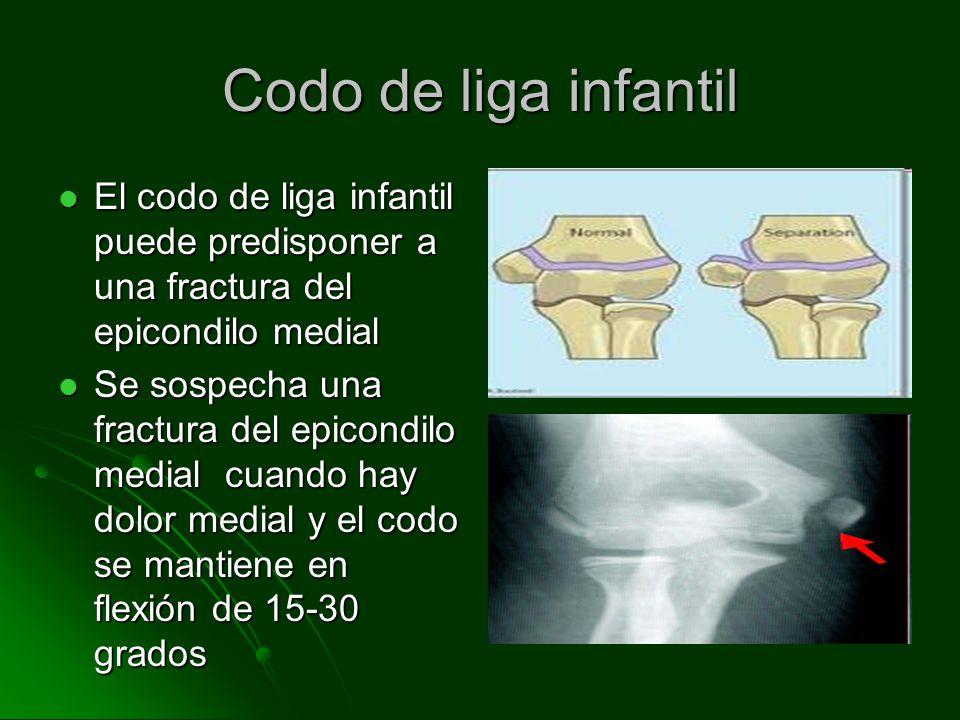 Codo de liga infantil El codo de liga infantil puede predisponer a una fractura del epicondilo medial El codo de liga infantil puede predisponer a una
