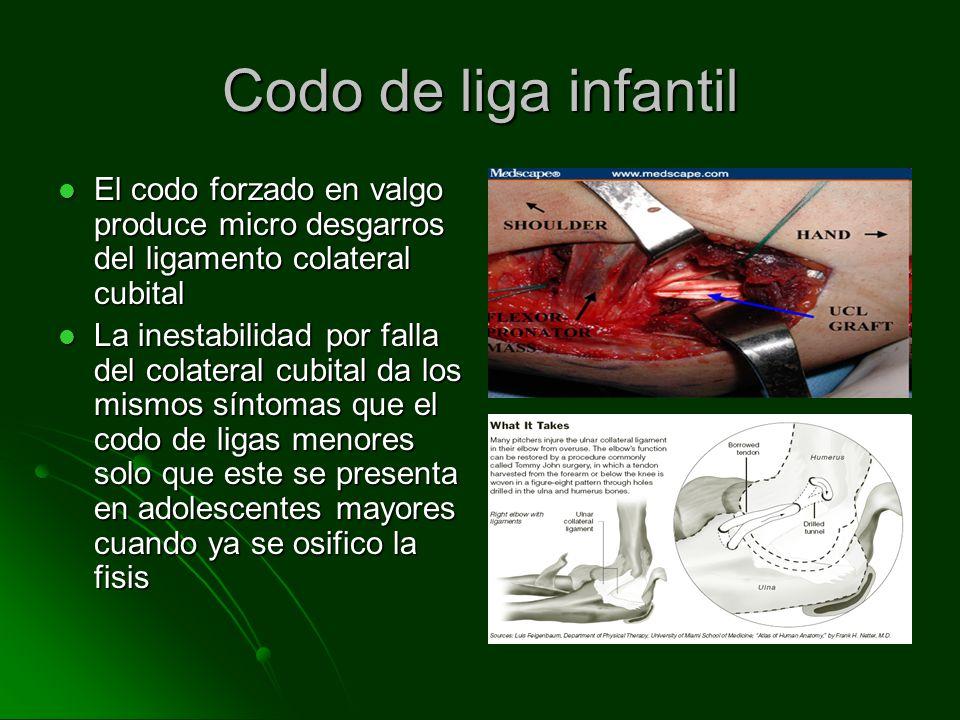 Codo de liga infantil El codo forzado en valgo produce micro desgarros del ligamento colateral cubital El codo forzado en valgo produce micro desgarro