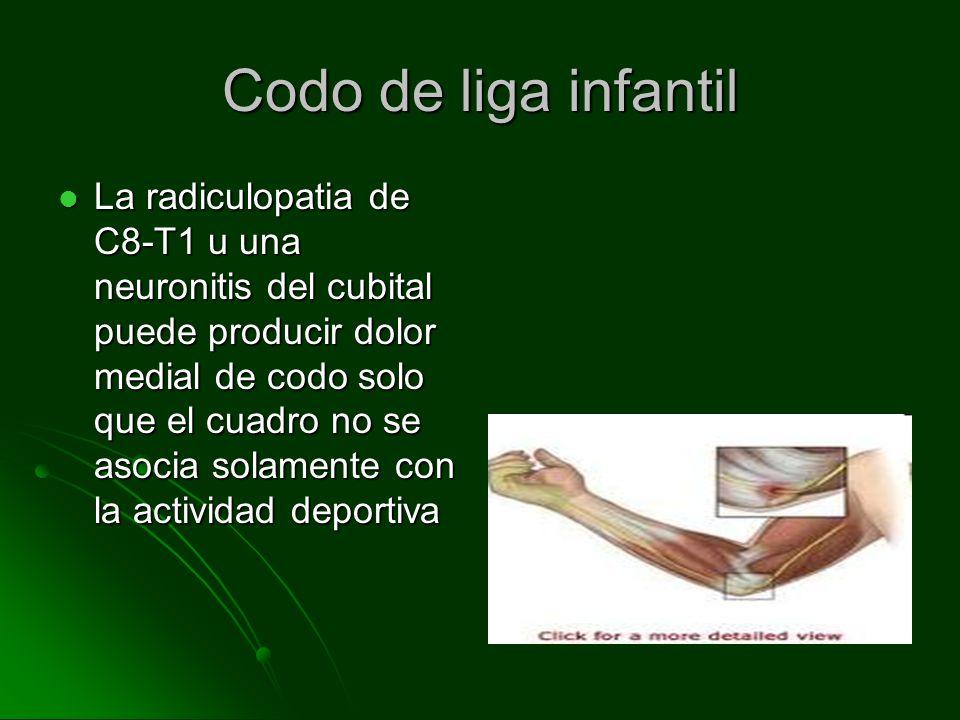 Codo de liga infantil La radiculopatia de C8-T1 u una neuronitis del cubital puede producir dolor medial de codo solo que el cuadro no se asocia solamente con la actividad deportiva La radiculopatia de C8-T1 u una neuronitis del cubital puede producir dolor medial de codo solo que el cuadro no se asocia solamente con la actividad deportiva