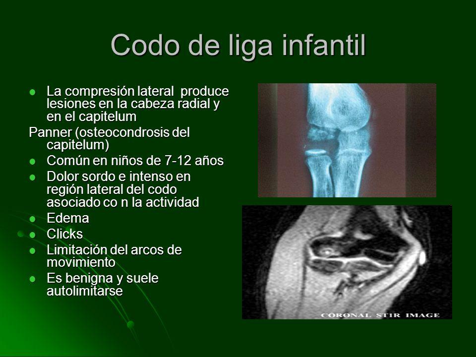 Codo de liga infantil La compresión lateral produce lesiones en la cabeza radial y en el capitelum La compresión lateral produce lesiones en la cabeza