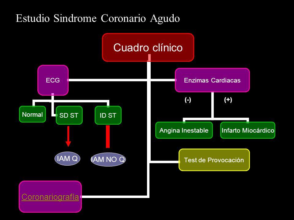 Estudio Sindrome Coronario Agudo (+)(-) IAM Q IAM NO Q