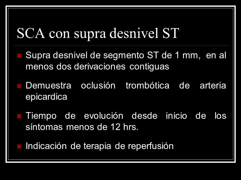 SCA con supra desnivel ST Supra desnivel de segmento ST de 1 mm, en al menos dos derivaciones contiguas Demuestra oclusión trombótica de arteria epica