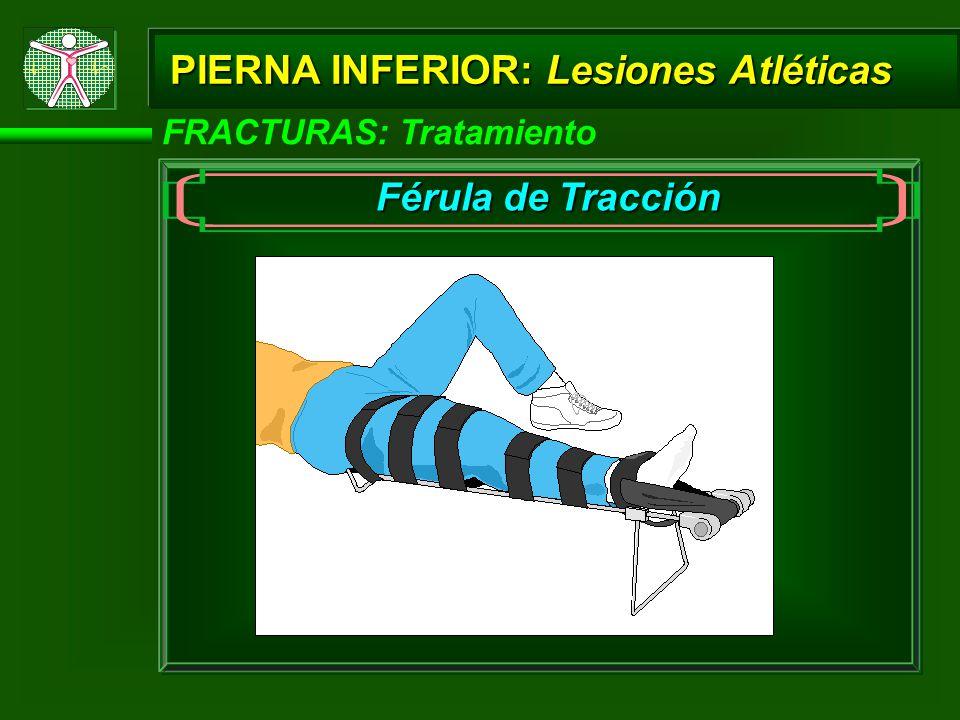 PIERNA INFERIOR: Lesiones Atléticas FRACTURAS: Tratamiento Férula de Tracción