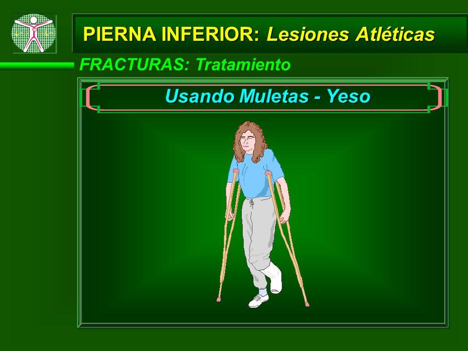 PIERNA INFERIOR: Lesiones Atléticas FRACTURAS: Tratamiento Usando Muletas - Yeso