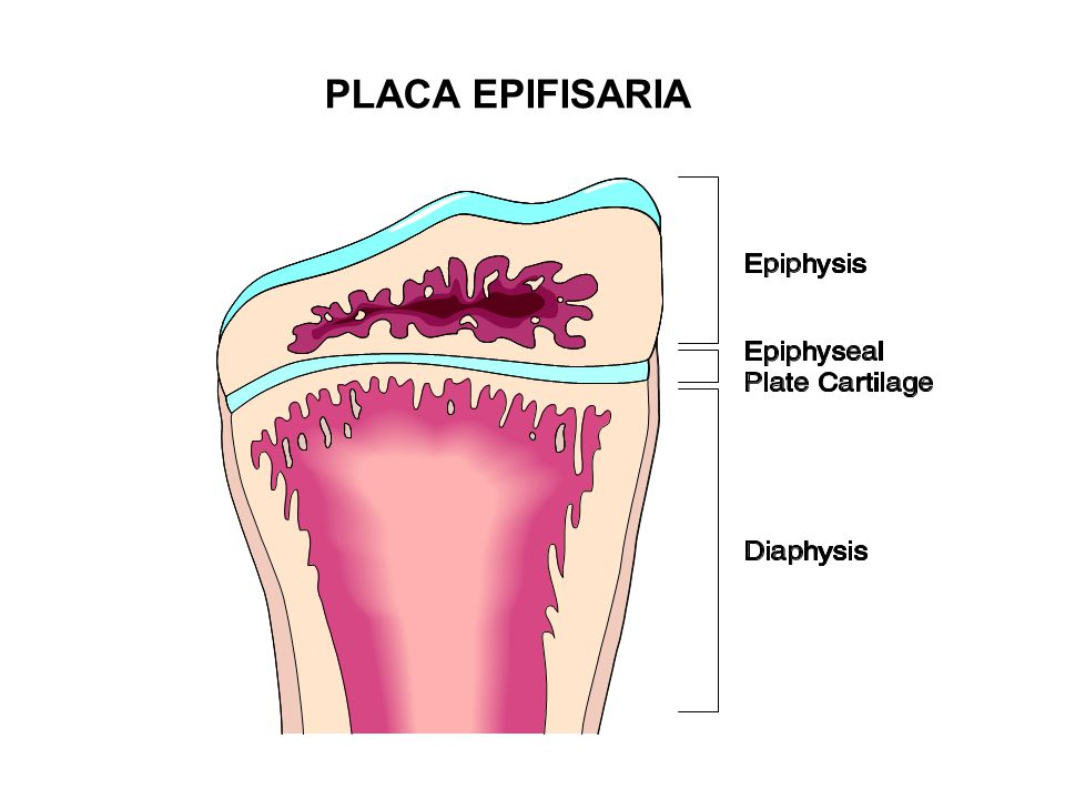 PLACA EPIFISARIA
