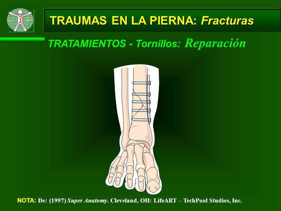 TRAUMAS EN LA PIERNA: Fracturas TRATAMIENTOS - Tornillos: Reparación NOTA: De: (1997) Super Anatomy. Cleveland, OH: LifeART – TechPool Studios, Inc.