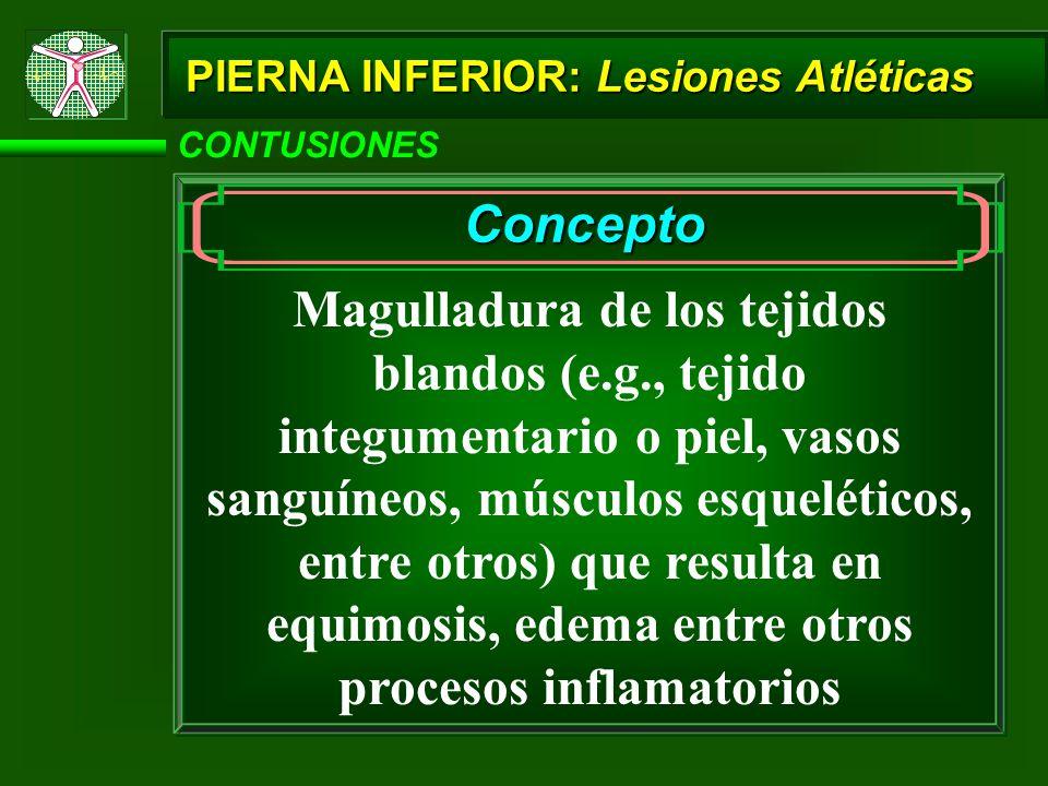 CONTUSIONES Concepto Magulladura de los tejidos blandos (e.g., tejido integumentario o piel, vasos sanguíneos, músculos esqueléticos, entre otros) que resulta en equimosis, edema entre otros procesos inflamatorios PIERNA INFERIOR: Lesiones Atléticas