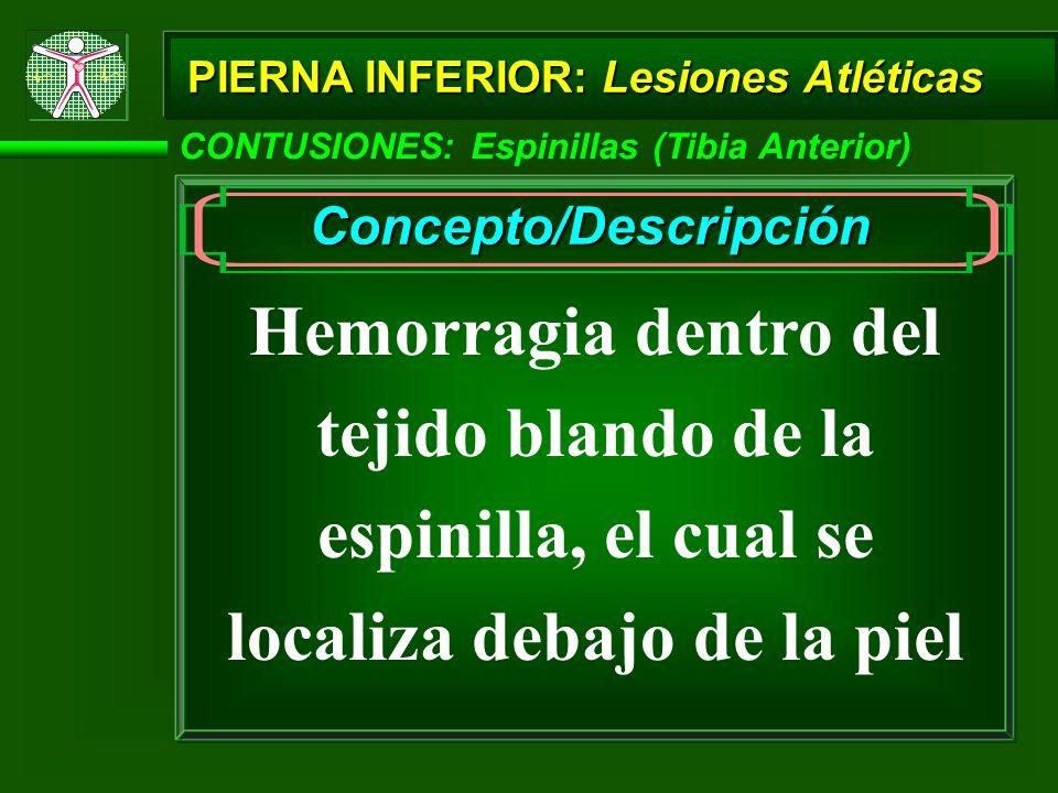 CONTUSIONES: Espinillas (Tibia Anterior) Concepto/Descripción Hemorragia dentro del tejido blando de la espinilla, el cual se localiza debajo de la piel PIERNA INFERIOR: Lesiones Atléticas