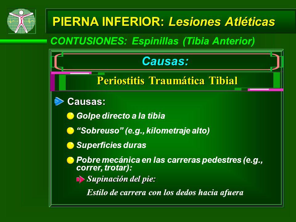 CONTUSIONES: Espinillas (Tibia Anterior) PIERNA INFERIOR: Lesiones Atléticas Causas: Periostitis Traumática Tibial Causas: Golpe directo a la tibia So