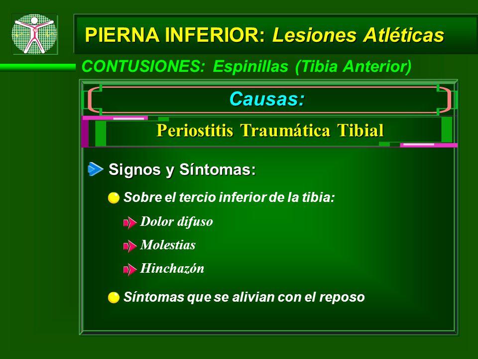 CONTUSIONES: Espinillas (Tibia Anterior) PIERNA INFERIOR: Lesiones Atléticas Causas: Periostitis Traumática Tibial Signos y Síntomas: Sobre el tercio