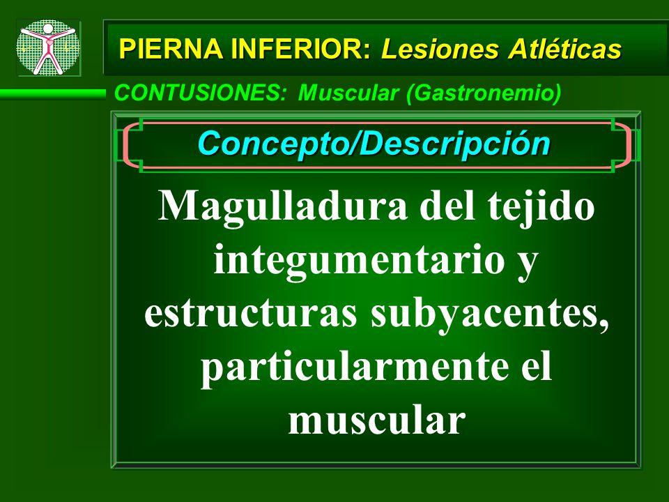 CONTUSIONES: Muscular (Gastronemio) PIERNA INFERIOR: Lesiones Atléticas Concepto/Descripción Magulladura del tejido integumentario y estructuras subyacentes, particularmente el muscular