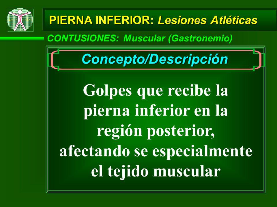 CONTUSIONES: Muscular (Gastronemio) PIERNA INFERIOR: Lesiones Atléticas Concepto/Descripción Golpes que recibe la pierna inferior en la región posterior, afectando se especialmente el tejido muscular