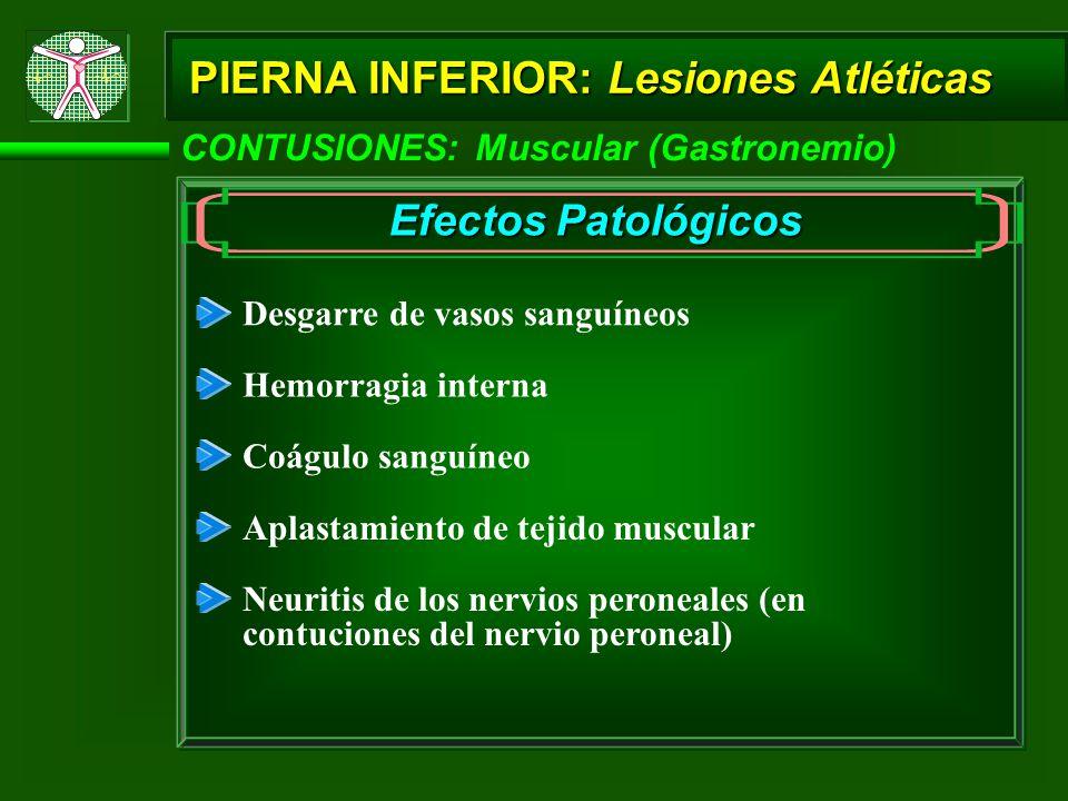 PIERNA INFERIOR: Lesiones Atléticas Efectos Patológicos Desgarre de vasos sanguíneos Hemorragia interna Coágulo sanguíneo Aplastamiento de tejido muscular CONTUSIONES: Muscular (Gastronemio) Neuritis de los nervios peroneales (en contuciones del nervio peroneal)