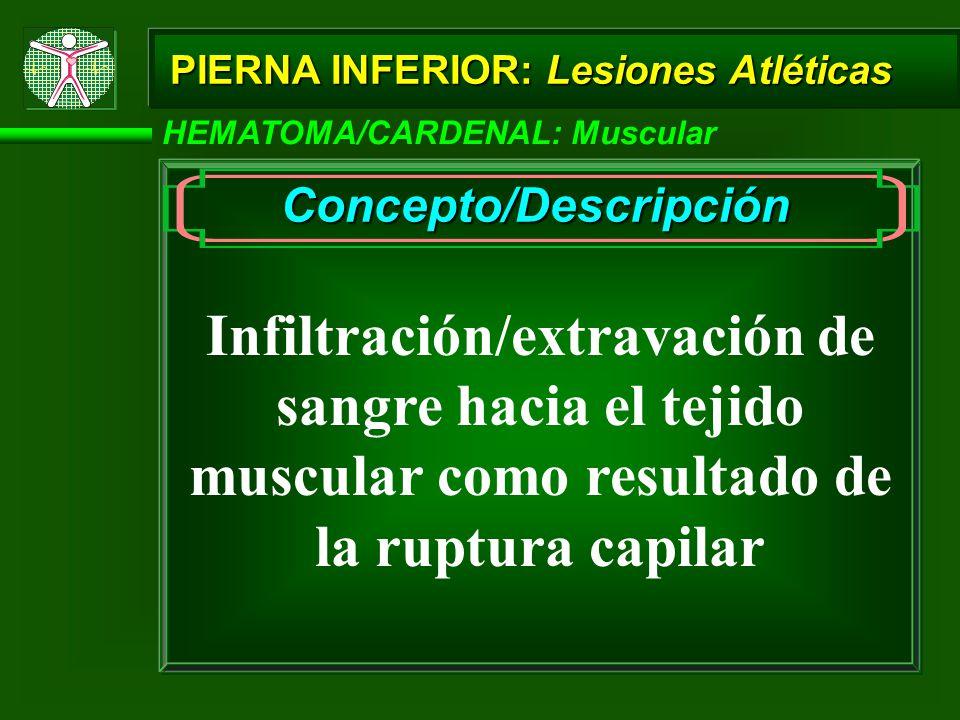 PIERNA INFERIOR: Lesiones Atléticas HEMATOMA/CARDENAL: Muscular Concepto/Descripción Infiltración/extravación de sangre hacia el tejido muscular como resultado de la ruptura capilar
