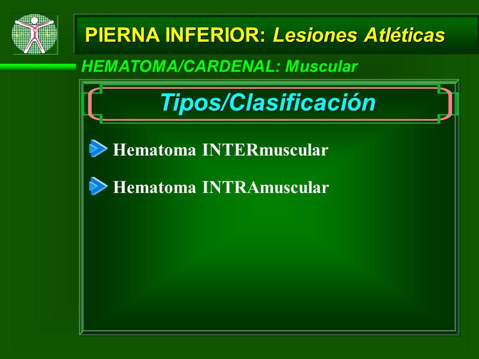PIERNA INFERIOR: Lesiones Atléticas HEMATOMA/CARDENAL: Muscular Tipos/Clasificación Hematoma INTERmuscular Hematoma INTRAmuscular