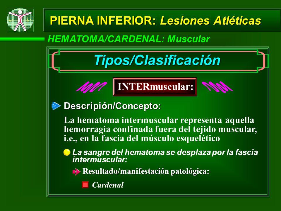 HEMATOMA/CARDENAL: Muscular PIERNA INFERIOR: Lesiones Atléticas Descripión/Concepto: La sangre del hematoma se desplaza por la fascia intermuscular: R