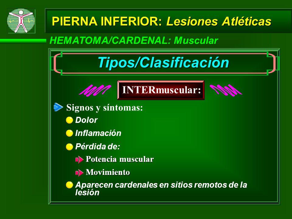HEMATOMA/CARDENAL: Muscular PIERNA INFERIOR: Lesiones Atléticas INTERmuscular: Tipos/Clasificación Inflamación Potencia muscular Movimiento Signos y síntomas: Pérdida de: Aparecen cardenales en sitios remotos de la lesión Dolor