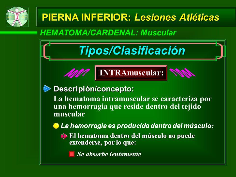 HEMATOMA/CARDENAL: Muscular PIERNA INFERIOR: Lesiones Atléticas Descripión/concepto: La hemorragia es producida dentro del músculo: El hematoma dentro del músculo no puede extenderse, por lo que: Se absorbe lentamente INTRAmuscular: Tipos/Clasificación La hematoma intramuscular se caracteriza por una hemorragia que reside dentro del tejido muscular