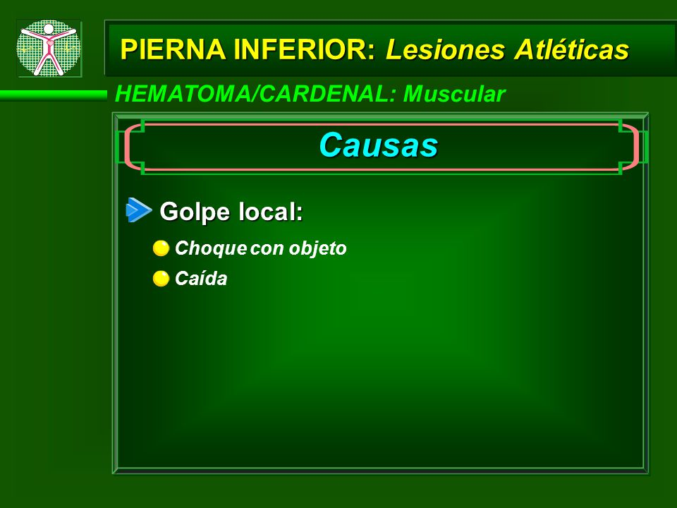 HEMATOMA/CARDENAL: Muscular PIERNA INFERIOR: Lesiones Atléticas Causas Golpe local: Caída Choque con objeto