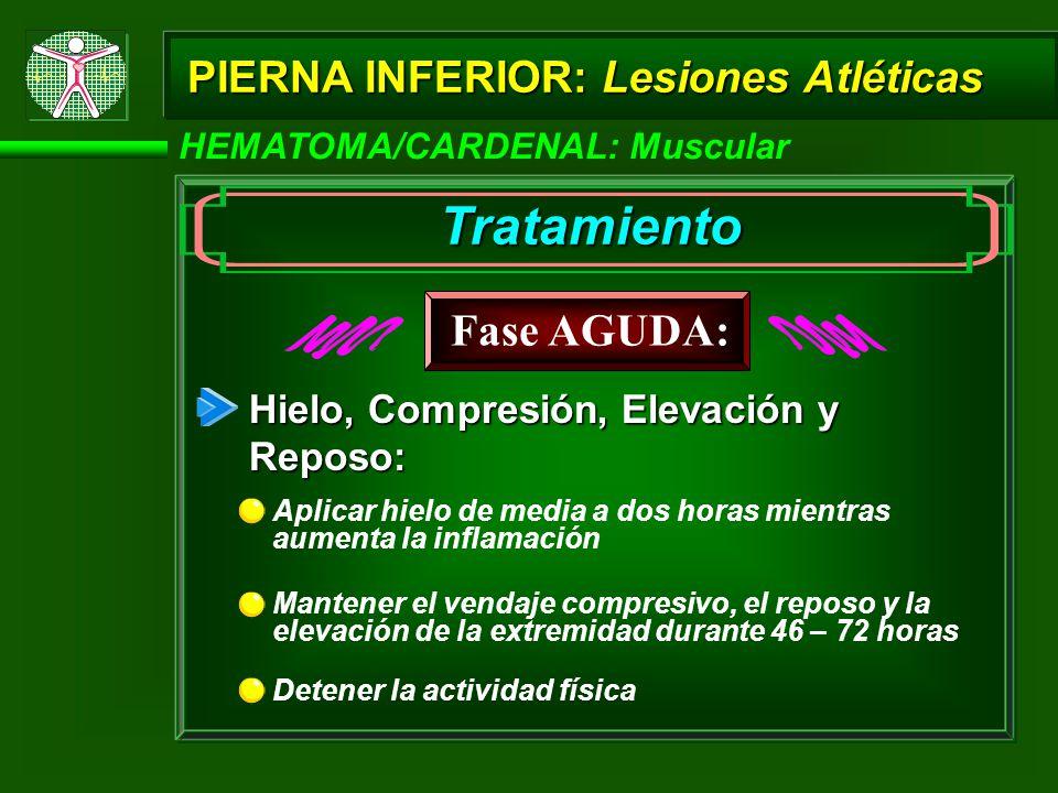 HEMATOMA/CARDENAL: Muscular PIERNA INFERIOR: Lesiones Atléticas Tratamiento Hielo, Compresión, Elevación y Reposo: Mantener el vendaje compresivo, el