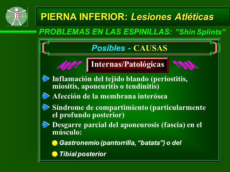 PIERNA INFERIOR: Lesiones Atléticas PROBLEMAS EN LAS ESPINILLAS: Shin Splints Posibles - CAUSAS Internas/Patológicas Inflamación del tejido blando (periostitis, miositis, aponeuritis o tendinitis) Síndrome de compartimiento (particularmente el profundo posterior) Desgarre parcial del aponeurosis (fascia) en el músculo: Tibial posterior Gastronemio (pantorrilla, batata) o del Afección de la membrana interósea